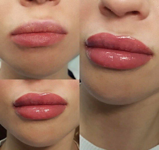 Перманентный макияж губ фото до и после